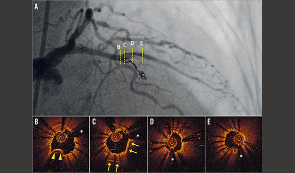 Focus on Coronary Interventions