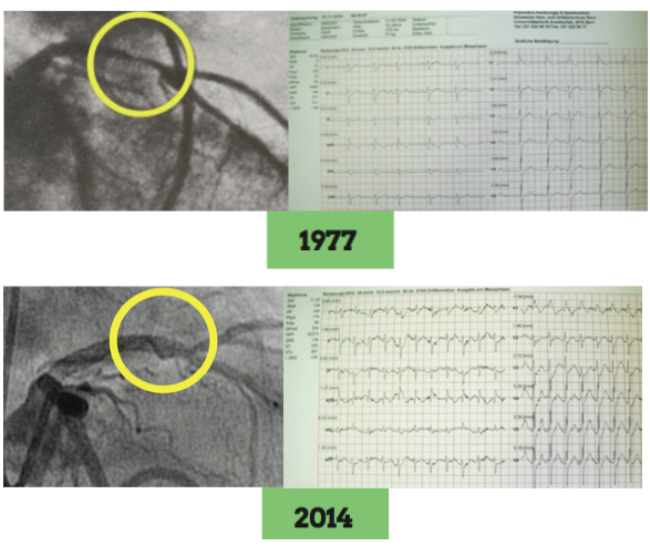 First PCTA: Follow-up comparison from 1977 to 2014