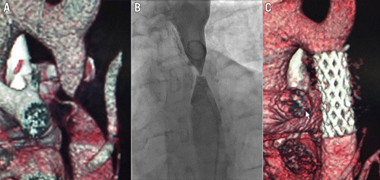 Percutaneous repair of severe coarctation of the aorta