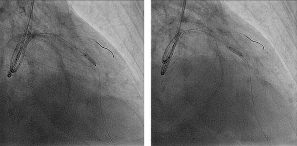 Image 16-17: covered stent post-dilatation with non-compliant balloon