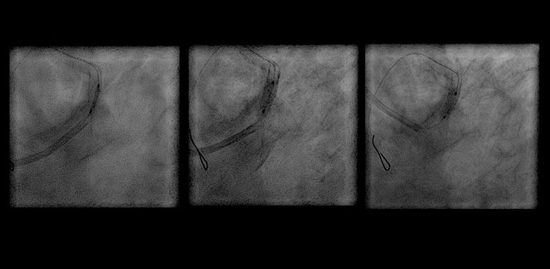 Ostial LAD stenting