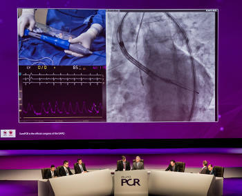 EuroPCR: LIVE demonstration at main arena