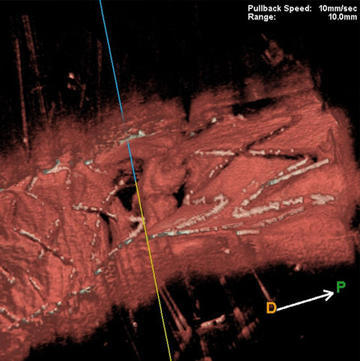 A surprising image of 3D optical frequency domain imaging in left main bifurcation