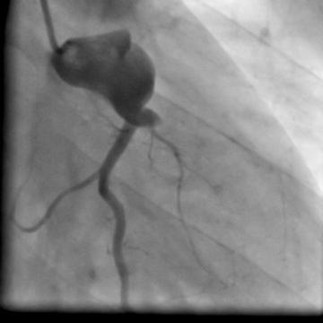 An unusual cause of myocardial infarction in a 28-year old