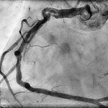 How should I explain and treat this angiographic findings?