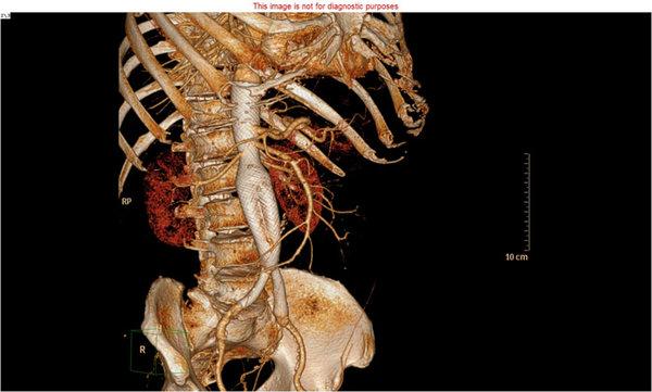 Juxtarenal aneurysm