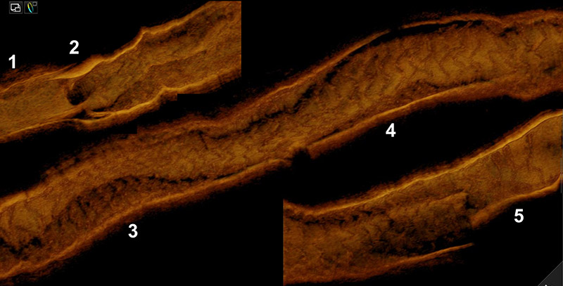 Bas-relief in 3D optical coherence tomography after scaffold implantation in a CTO - Image 10