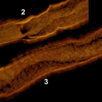 Bas-relief in 3D optical coherence tomography after scaffold implantation in a CTO
