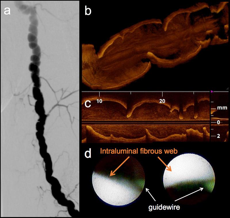 Brachial artery fibromuscular dysplasia