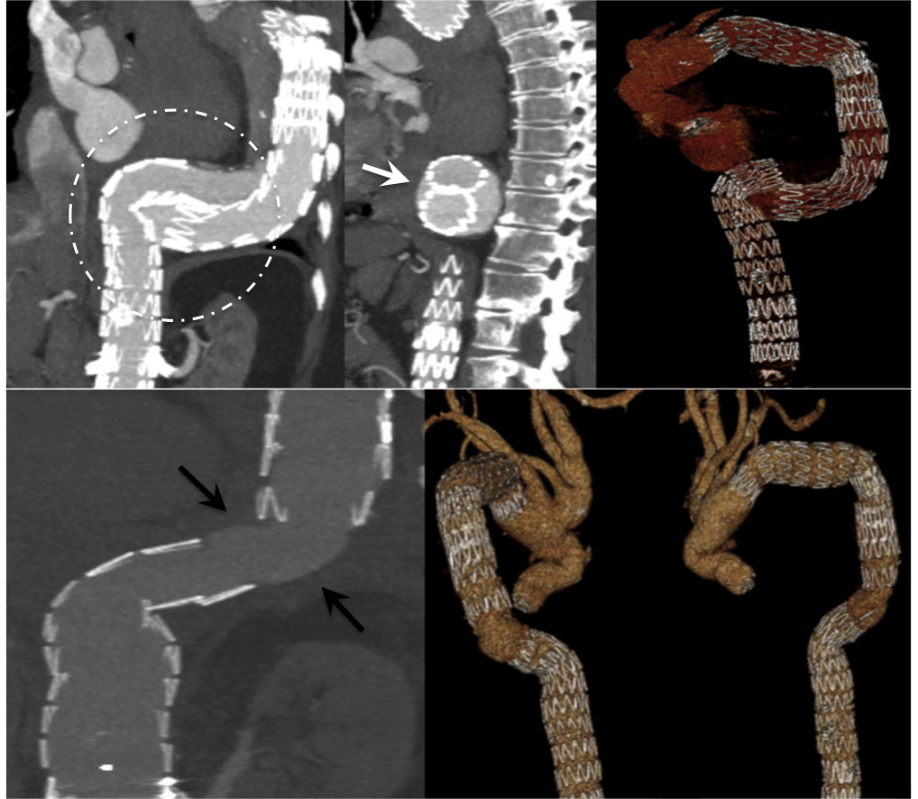 Late stent migration in thoracic endovascular aortic repair: a potentially lethal complication