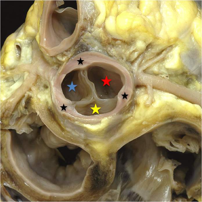 Aortic sinuses