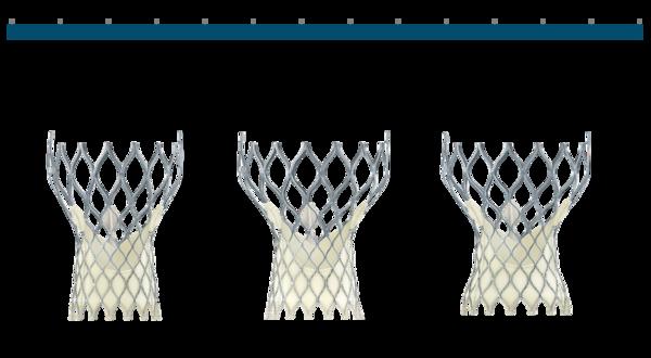 Figure 11. Medtronic CoreValve Transcatheter Aortic Valve native annulus diameter