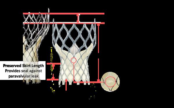 Figure 25. Medtronic CoreValve Evolut transcatheter aortic valve dimensions