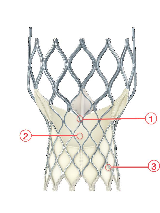 Figure 24. Medtronic CoreValve Evolut transcatheter aortic valve