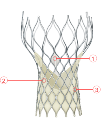 Figure 8. Medtronic CoreValve Transcatheter Aortic Valve