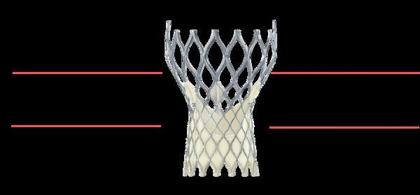 Figure 9. Medtronic CoreValve Transcatheter Aortic Valve
