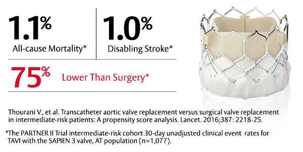 Changing the World of Aortic Stenosis Therapy