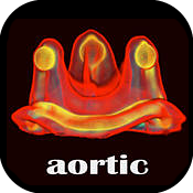 Valve in Valve (Aortic) app