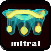 Valve in Valve (Mitral) app