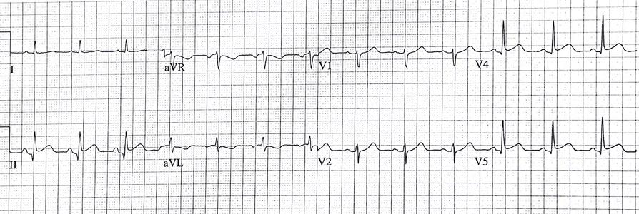 How should I treat a patient with idiopathic thrombocytopaenic purpura presenting with ST elevation myocardial infarction?