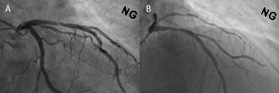 How should I treat edge restenosis lesion after implantation of an everolimus-eluting metallic stent?