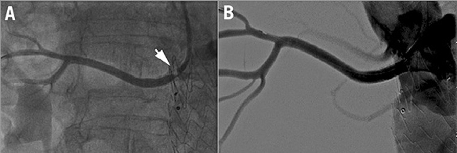 How should I treat renal artery in-stent restenosis and stent fracture after endovascular abdominal aortic aneurysm repair?