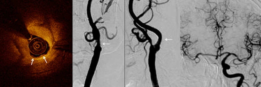 Advanced coronary and carotid disease in a patient undergoing non-cardiac surgery
