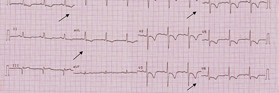 Treating an ACS patient with melena 9 years after CABG
