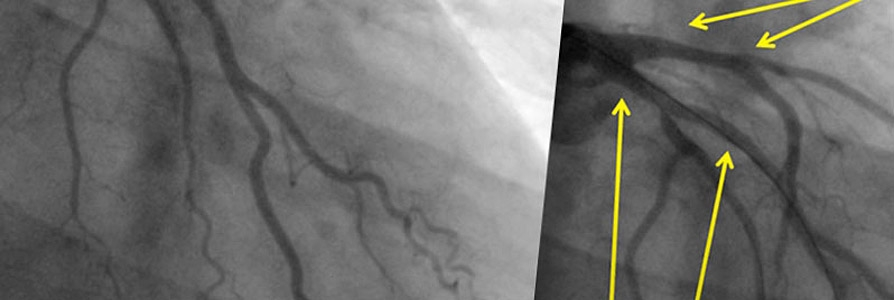 Multivessel disease (LAD, Cx, RCA): treated with 3 Absorb scaffolds