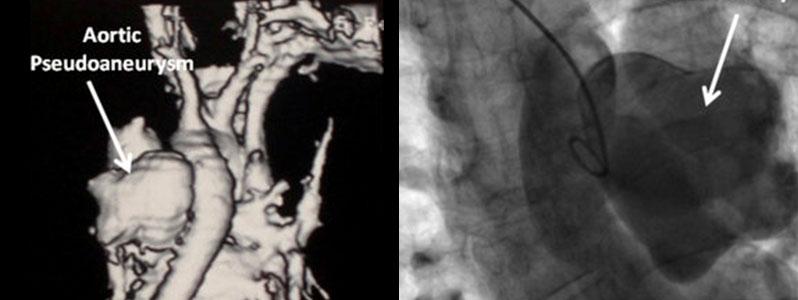 Endovascular repair of aorto-pulmonary shunting