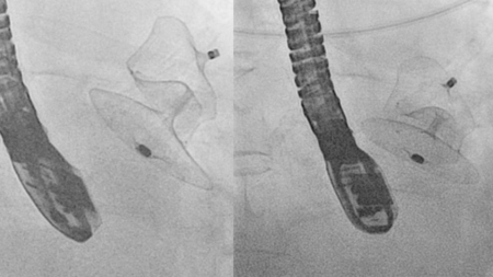 laa left atrial appendage closure